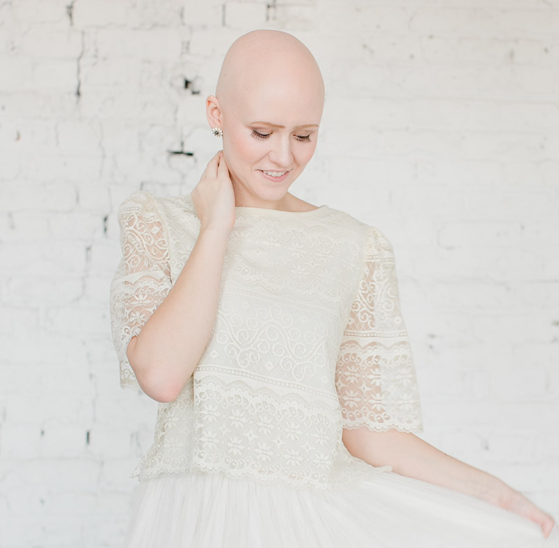 Click for Hope Alopecia Campaign Photo Shoot Styling